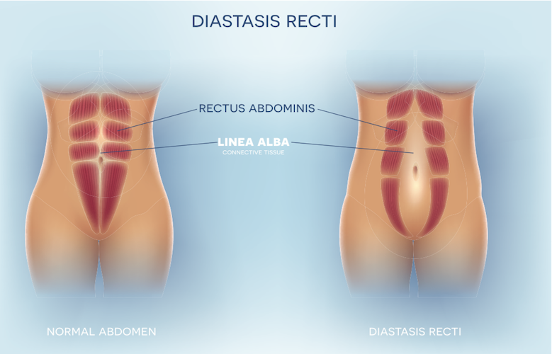 Diastasis Recti. Shows normal rectus abdominis muscles with narrow lines of linea alba (connective tissue). Diastasis recti where rectus abdominis are separated by large gap where linea alba is located.