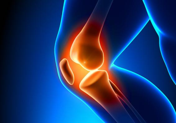 Digital image of a knee with joint highlighted in orange
