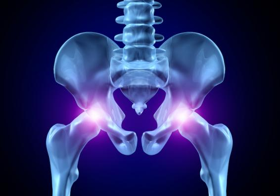 Medical illustration of hip structure with hip joints highlighted red