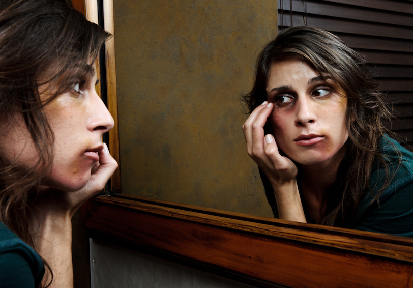 Woman examining bruised face in a mirror